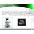 پاورپوینت آماده پاورپوینت آماده اثر سونوگرافی داپلر در تشخیص گرفتگی عروق